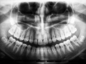 Dental Implants in Tulsa