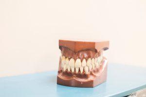 Dental Crowns in Tulsa