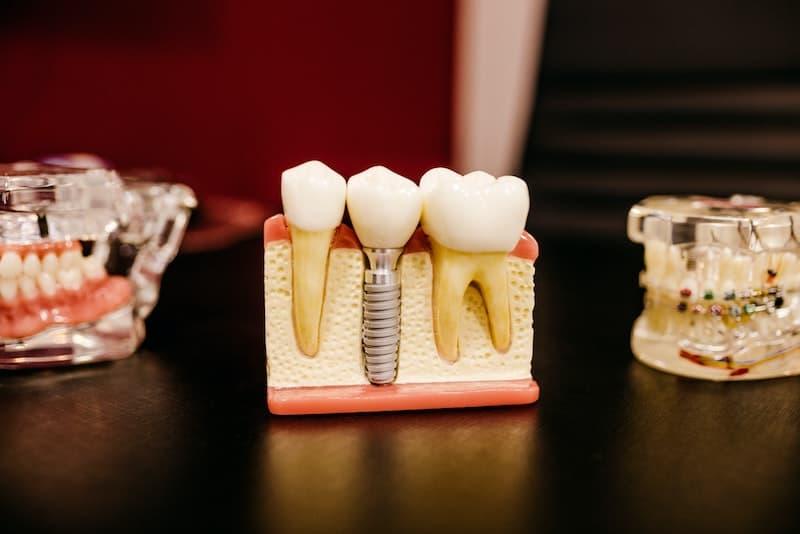 Tulsa Dental Implants