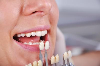 Porcelain Dental Veneers Tulsa